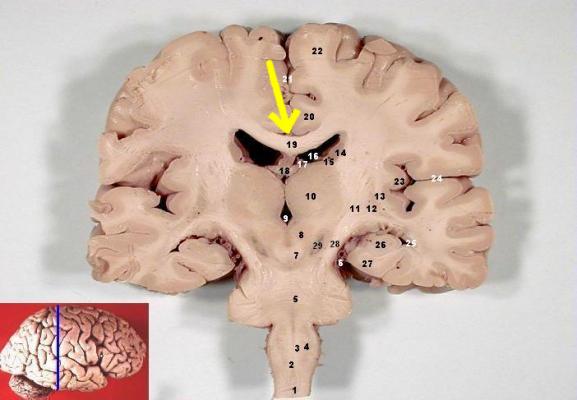 Human Brain Frontal (coronal)section description emphasizing corpus callosum