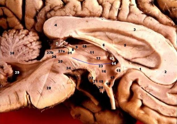 Human brain left midsagitttal