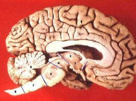 Human brain midsagittal cut description