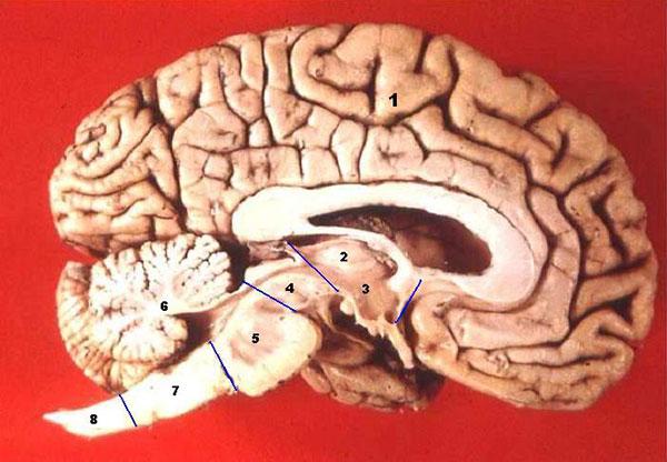 Human brain midsagittal cut description