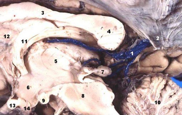 Human brain right Great Cerebral Vein midsagittal