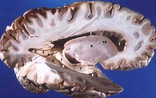 não người
