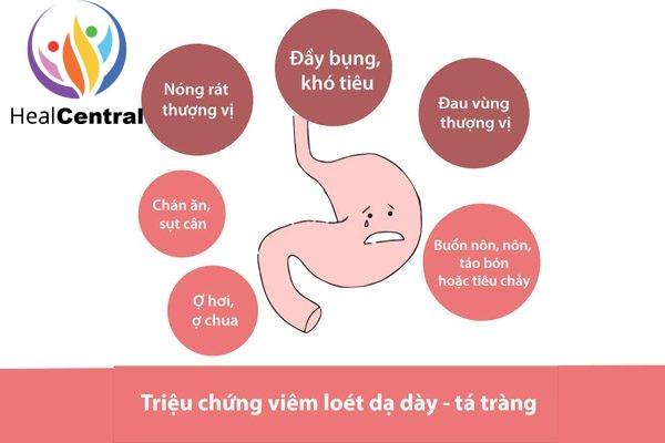 Thuốc Ibutop 50 điều trị triệu chứng viêm loét dạ dày tá tràng