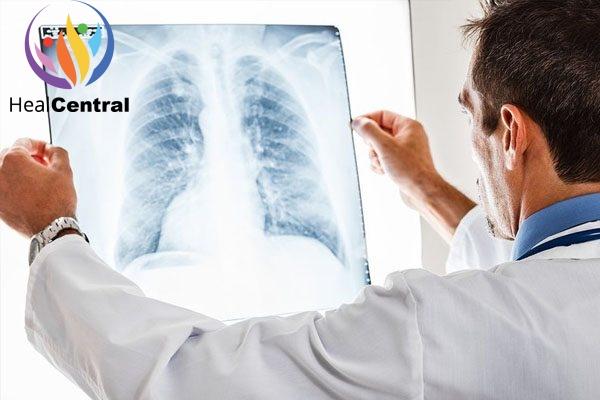 Tổn thương phổi khi dùng Vaping