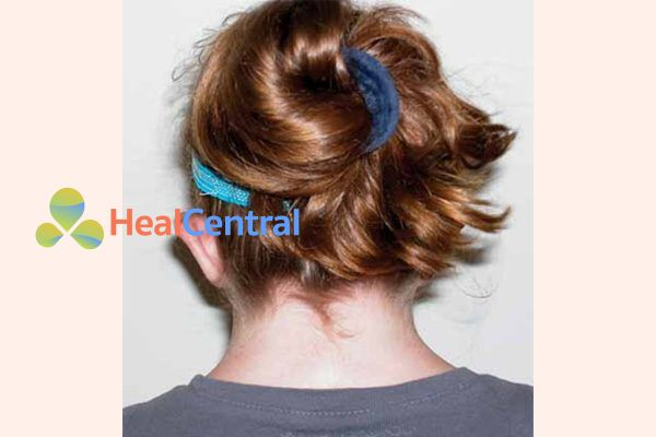Chân tóc thấp sau cổ