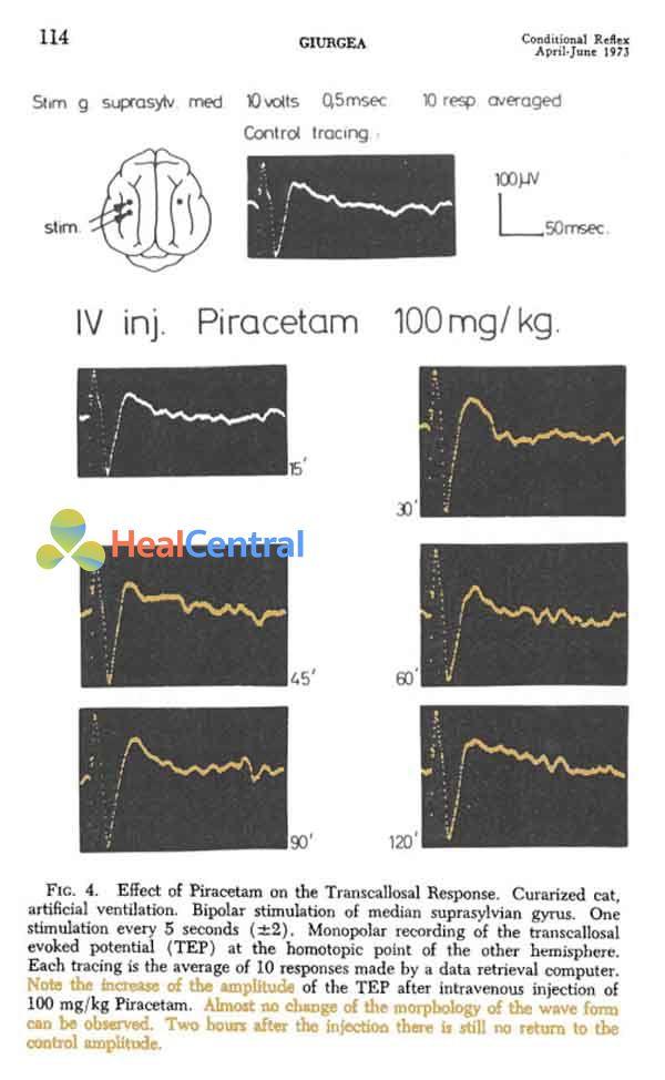 Hiệu quả của piracetam trên đáp ứng thể chai. Liều piracetam 100 mg/kg tĩnh mạch. Chú ý sự gia tăng biên độ của điện thế gợi thể chai sau khi dùng piracetam tại các khoảng thời gian. Hầu như không có sự thay đổi hình thái của dạng sóng. 2 giờ sau tiêm tĩnh mạch nó vẫn không trở về biên độ đối chứng (hình trên cùng).