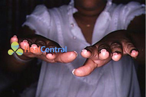 Móng tay lồi trong hội chứng Turner. Mặt cắt móng hình chữ U.