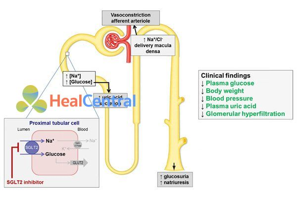 Vị trí tác dụng của các thuốc ức chế SGLT2.