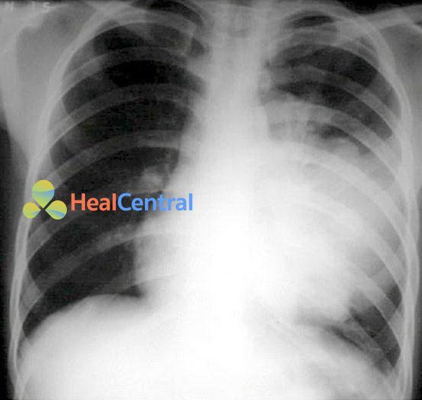 Viêm phổi mắc phải tại công đồng