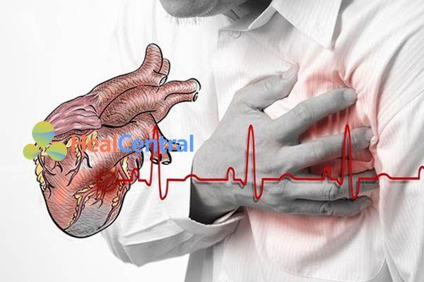Bệnh đau thắt ngực