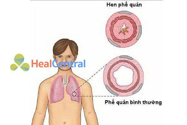 Không dùng natri benzoat với bệnh nhân hen phế quản