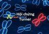 Hội chứng Turner