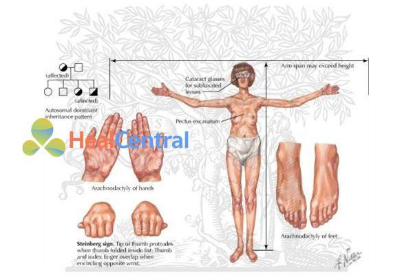Hội chứng Marfan