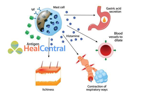 Kháng Histamin chống dị ứng