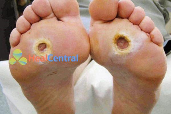 Bàn chân của bệnh nhân bị đái tháo đường
