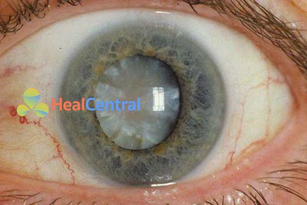 Mắt của bệnh nhân bị đái tháo đường