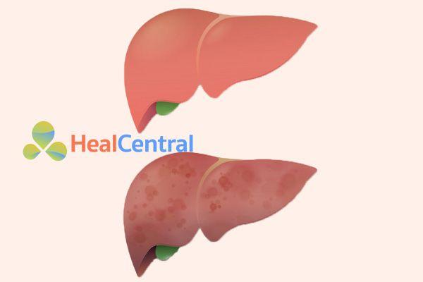 Bệnh nhân bị viêm gan B thể hoạt động