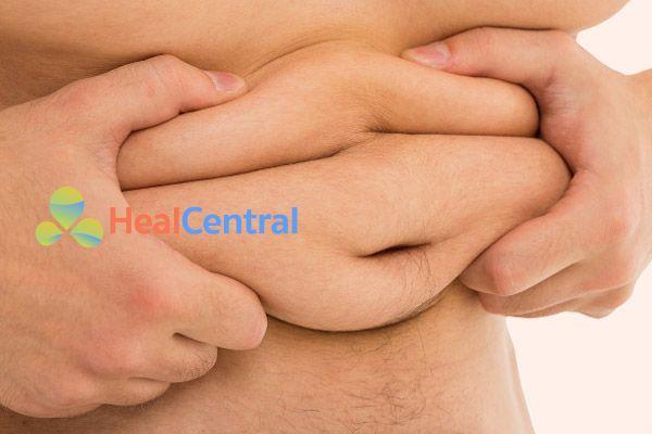 Béo phì là một trong nhiều nguyên nhân gây ra bệnh mỡ máu