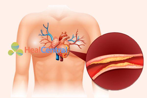 Biến chứng tim mạch rất nguy hiểm