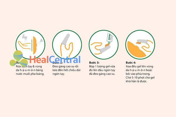 Hướng dẫn cách bôi thuốc trị trĩ