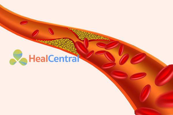 Mỡ máu cao làm tắc nghẽn mạch