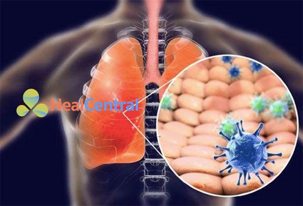 Xử trí suy hô hấp gây ra bởi virus Corona 2019-nCoV mới gây ra