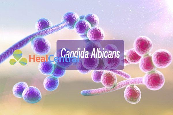 Nấm Candida Albicans thường là nguyên nhân chính gây ra các bệnh âm đạo