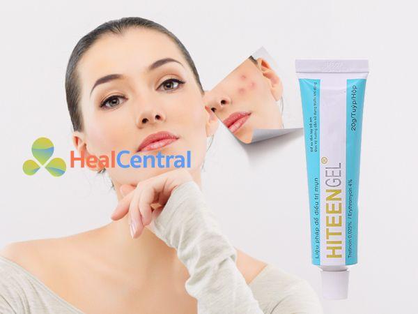 Kem trị mụn Hiteen gel giúp làn da sạch mụn