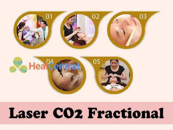 Công nghệ mới Laser CO2 Fractional mang lại hiệu quả cao, không đau đơn, không để lại sẹo