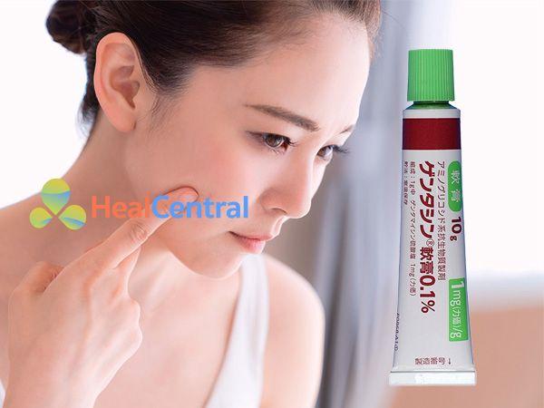 Sản phẩm Gentacin - làm mờ sẹo lồi, sẹo thâm