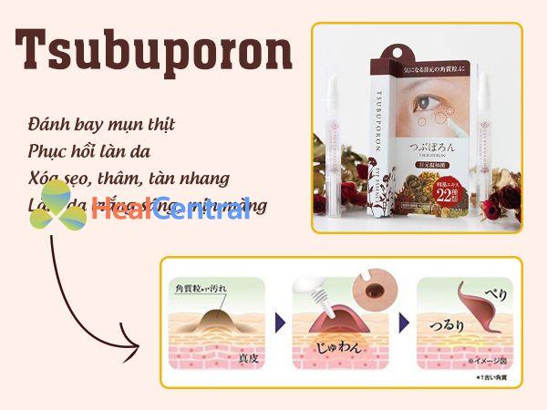 Tsubuporon trị mụn thịt có tốt không?