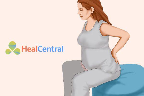 Biểu hiện của bệnh trĩ khi mang thai