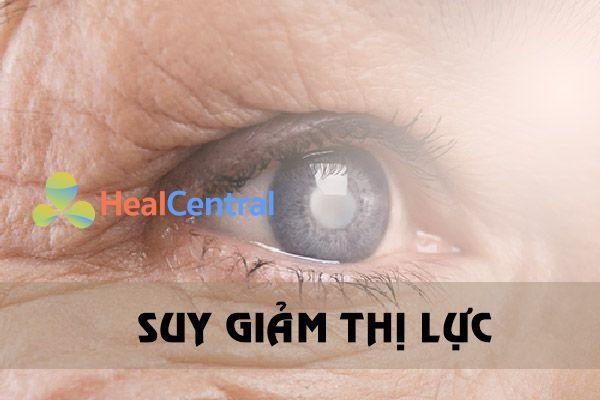 Bệnh lý về mắt của đái tháo đường type 2