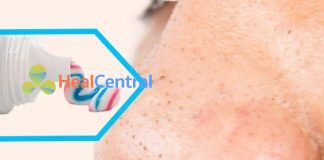 Cách trị mụn đầu đen bằng kem đánh răng hiệu quả