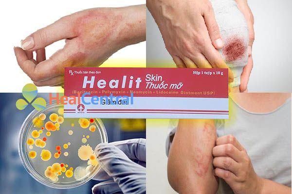 Công dụng của thuốc Healit Skin Ointment