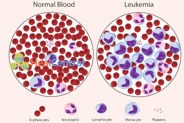 Leukemia (CML)