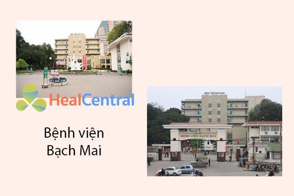 Cắt trĩ tại bệnh viện Bạch Mai.