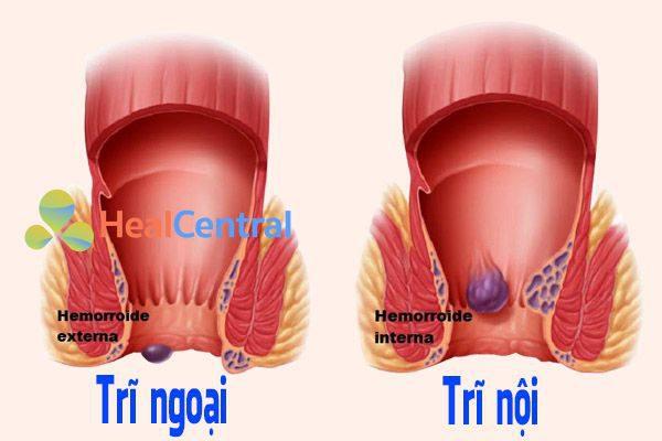 Bệnh trĩ nội và trĩ ngoại