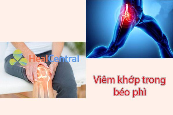 Béo phì làm gia tăng nguy cơ rất lớn dẫn đến viêm khớp gối và viêm khớp hông