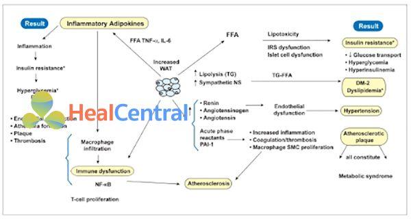Ảnh: Vai trò của rối loạn điều hòa chuyển hóa lipid và quá trình viêm trong béo phì. Mô mỡ trắng (WAT) giải phóng các adipokine gây viêm, gây ra các ảnh hưởng đa dạng, quan sát được ở cột bên trái (kháng insulin và đái tháo đường type 2, rối loạn chức năng nội mô, hình thành huyết khối...). Mối tương quan của chúng với hội chứng chuyển hóa được thể hiện ở cột bên phải (kháng insulin và đái tháo đường type 2, tăng huyết áp, hình thành mảng vữa xơ...). Tất cả các tác động cuối cùng dẫn đến vữa xơ động mạch được nêu ở dưới cùng. DM-2 (diabete type 2): đái tháo đường type 2, FFA (free fatty acid): acid béo tự do, IL: interleukin, IRS (insulin receptor substrate): cơ chất insulin receptor, NF-κB (nuclear factor kappa B): yếu tố nhân kappa B, NS (nervous system): hệ thần kinh, PAI-1 (plasminogen activator inhibitor-1): chất ức chế hoạt hóa plasminogen-1, SMC (smooth muscle cell): tế bào cơ trơn, TG: triglyceride, TNF (tumor necrosis factor): yếu tố hoại tử khối u.