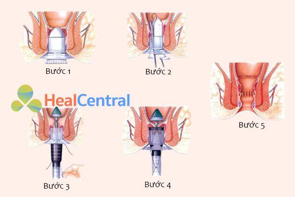 Các bước phẫu thuật cắt trĩ bằng phương pháp Longo