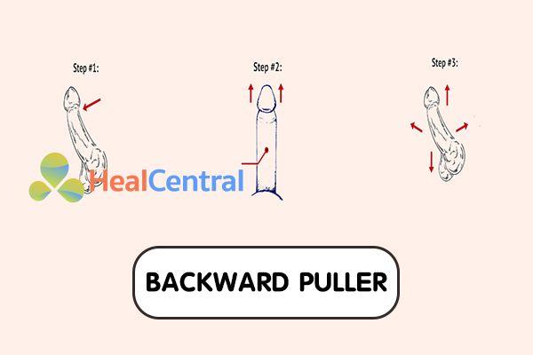 Hướng dẫn bài tập Backward Puller