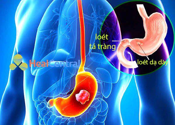 Loét dạ dày-tá tràng là căn bệnh phổ biến hiện nay ở mọi lứa tuổi