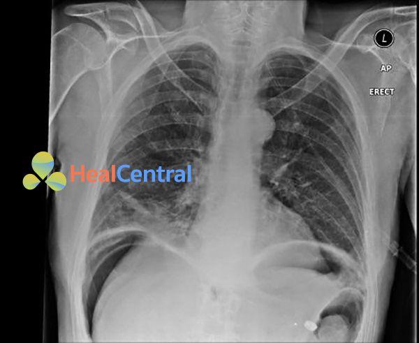 Hình 2. Hình ảnh liềm hơi dưới cơ hoành trên X-quang.