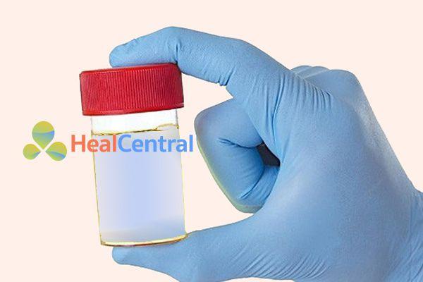 Nước tiểu có màu xanh do Xanh Methylen và chất chuyển hóa có trong thuốc Domitazol