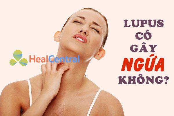 Phát ban của bệnh Lupus không gây ngứa như nhiều người lầm tưởng