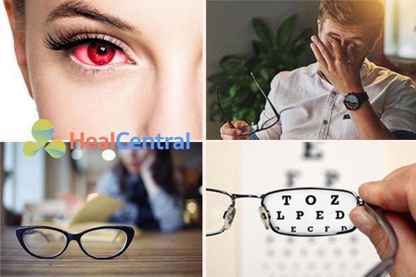 Những trường hợp cần sử dụng thuốc bổ mắt