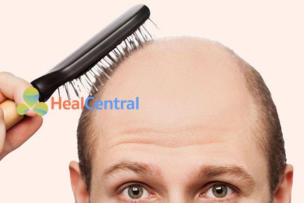Thuốc mọc tóc có tác dụng chữa hói không?