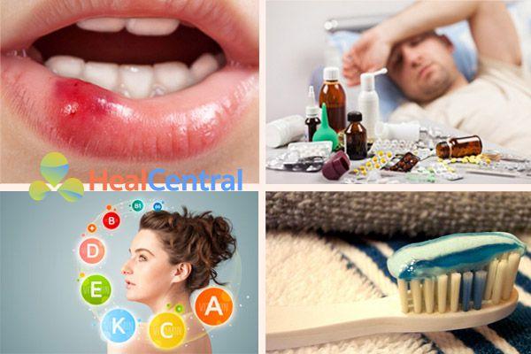 Có rất nhiều nguyên nhân khác nhau dẫn đến nhiệt miệng