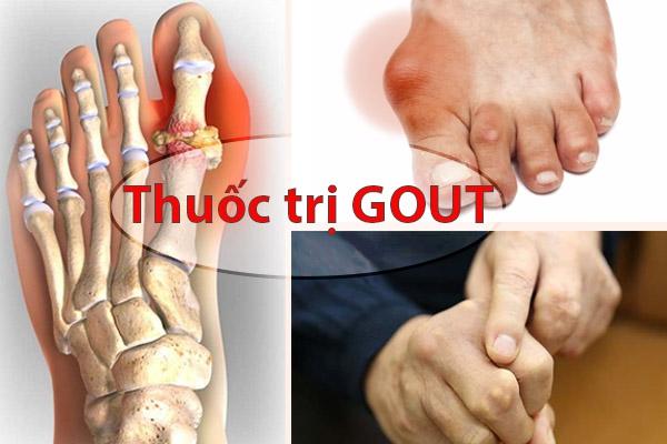 Các loại thuốc điều trị Gout tốt nhất hiện nay